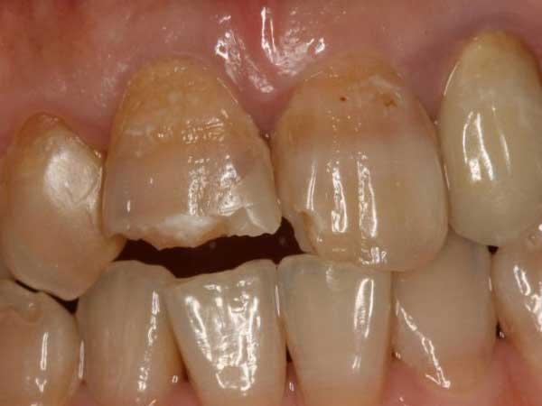 四環素牙的常識你了解嗎