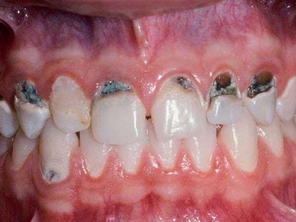 四環素牙是一種病嗎