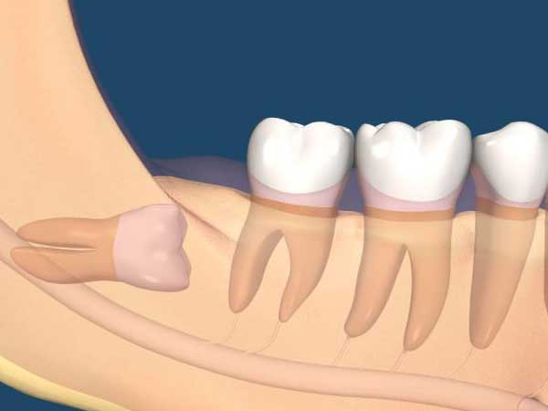智齿冠周炎有哪些病因