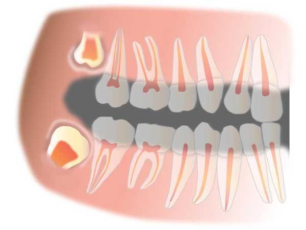 智齿冠周炎是什么