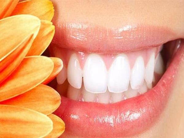 最便宜的牙_三种牙齿矫正方式你喜欢那种