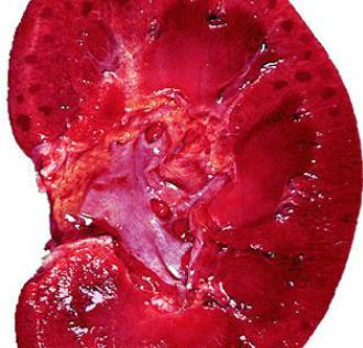 肾盂肾炎复发原因