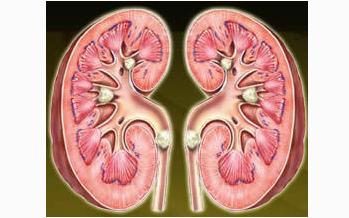 肾盂肾炎早期预防方案