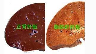 脂肪肝是肝炎吗