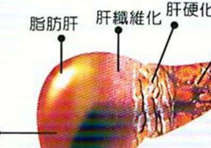 肝脏生理解剖结构_肝硬化结节图片有什么表现