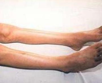得了先天性肌肉萎缩症寿命受影响吗