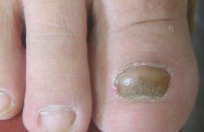 重度灰指甲遗传吗