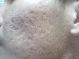 如何去除额头的痘痘_痤疮的发病机制及其预防治疗_飞华健康网