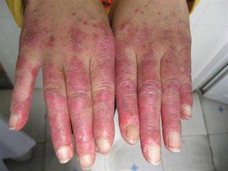 系统性红斑狼疮最长寿命是多久