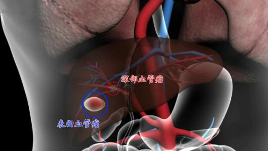 肝血管瘤的主要危害有哪些