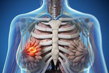 乳腺小结节对身体会造成什么危害