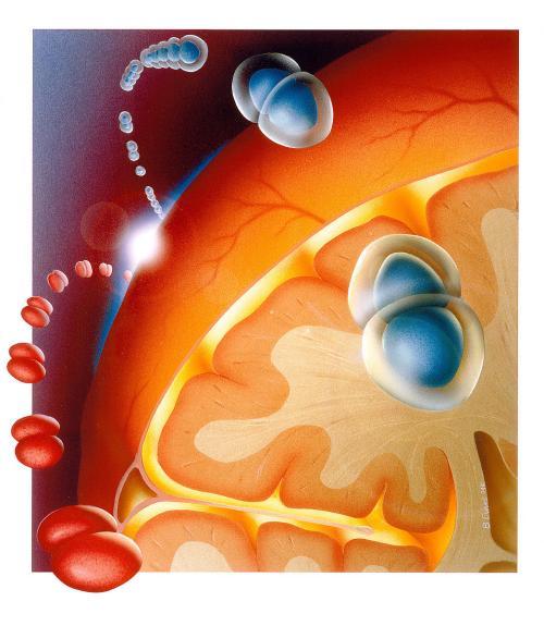 脑膜炎的护理要点介绍