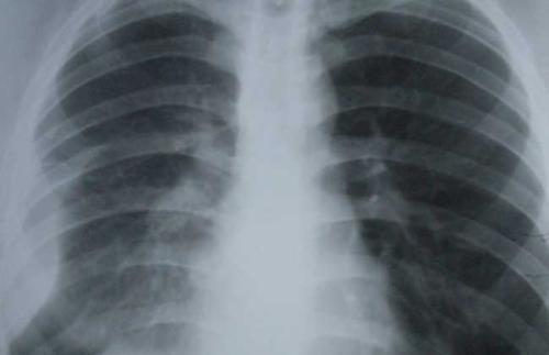 胸膜炎预防的关键是什么