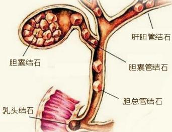 年轻人如何预防胆囊结石