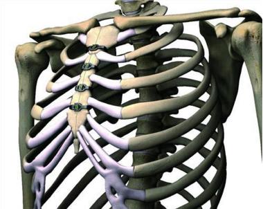 肋软骨炎手术后会复发吗