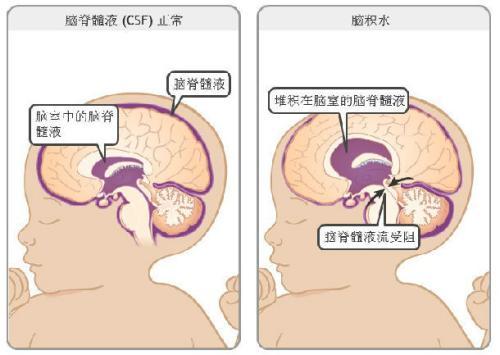 脑积水诊断有哪些的方法