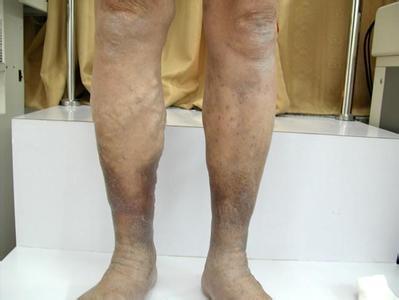 下肢靜脈血栓
