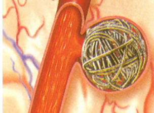 动脉瘤介入治疗的办法是什么呢