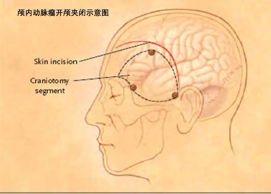 动脉瘤有什么并发症呢