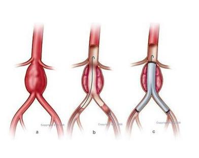 动脉瘤有什么严重的后果