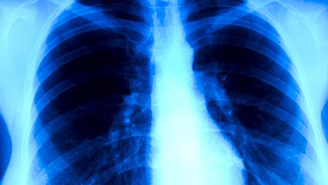 肺癌 (1).jpg