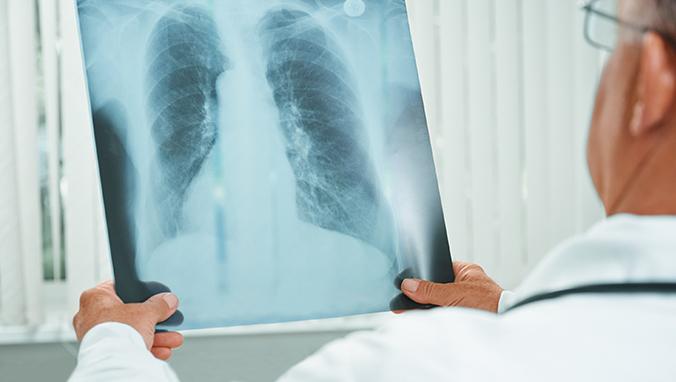 肺癌 (11).jpg