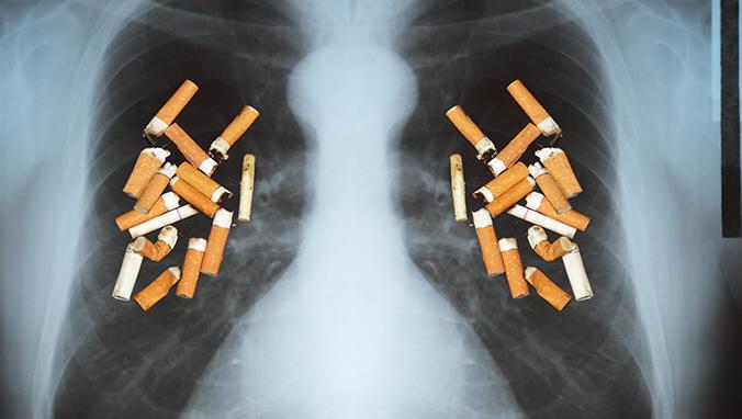 肺癌 (5).jpg