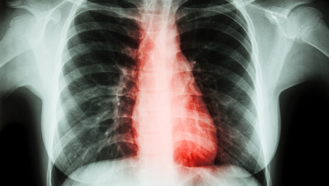 肺癌 (27).jpg