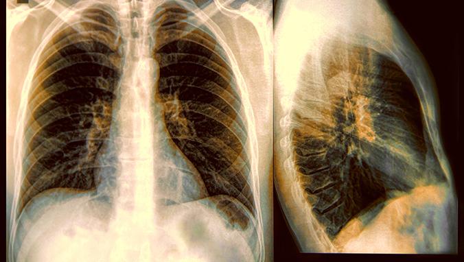 肺癌 (9).jpg
