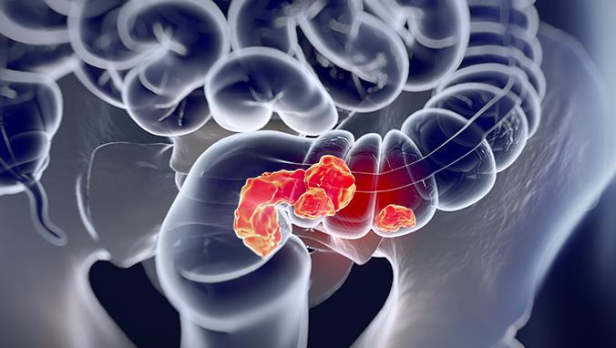 肠癌 (2).jpg