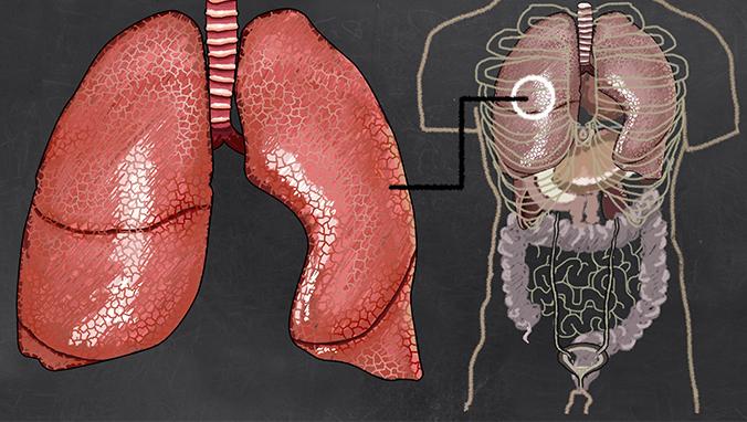 肺癌 (54).jpg