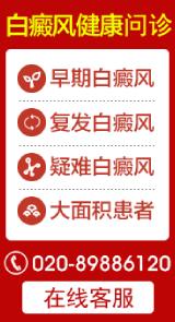 广州白癜风专家咨询