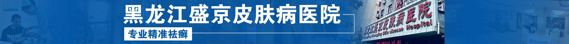 黑龙江牛皮癣医院