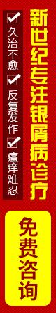 广州牛皮癣专家在线预约