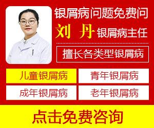 广州牛皮癣医院哪家好