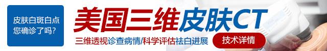 广州白癜风专科医院