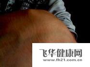 腱鞘炎可以用针灸治疗吗