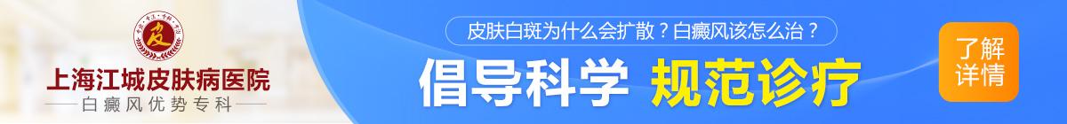 上海白斑病医院
