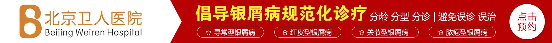 北京银屑病医院