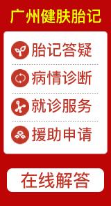 广州治疗胎记医院