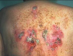 男性淋球菌阳性什么症状