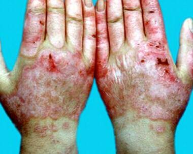 系统性红斑狼疮护理措施