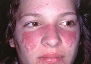 红斑狼疮治疗容易吗