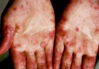 系统性红斑狼疮症状早期