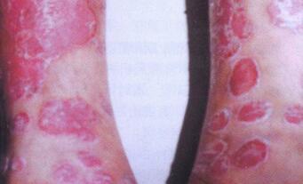 红斑狼疮治疗注意事项