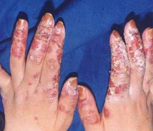 水肿性红斑狼疮治疗方法