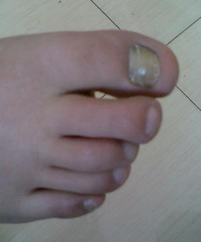 灰指甲的初步症状