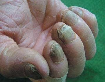 灰指甲刚开始的症状有哪些