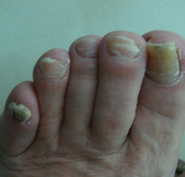 灰指甲表现症状有哪些