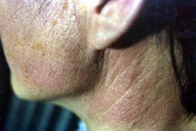 皮肌炎症状及治疗